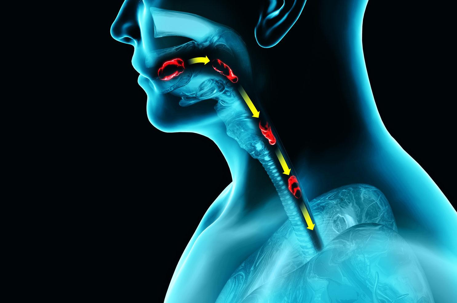 Swallowing diagram